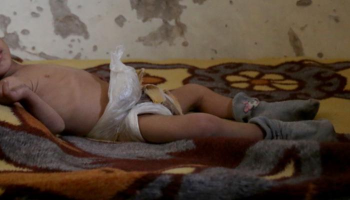Síria: 529 pacientes ainda precisam de acesso a cuidados de saúde