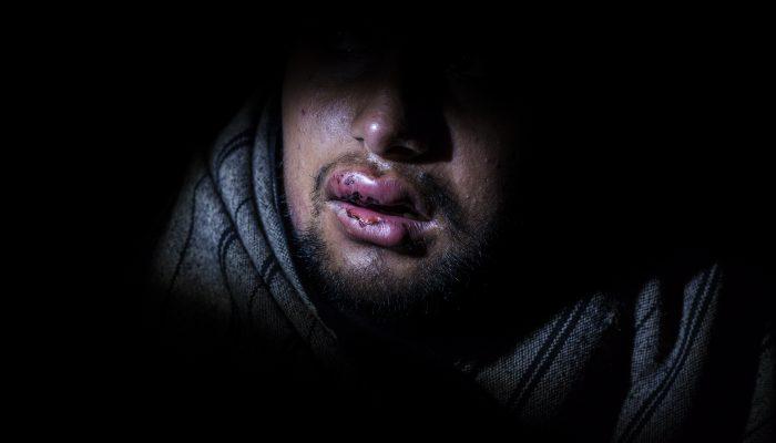 Croácia: UE cúmplice em violência e abuso contra refugiados e migrantes pela polícia