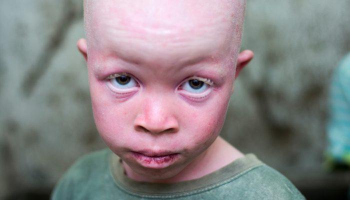 África Austral: Porque defendemos um plano regional para acabar com a morte de albinos